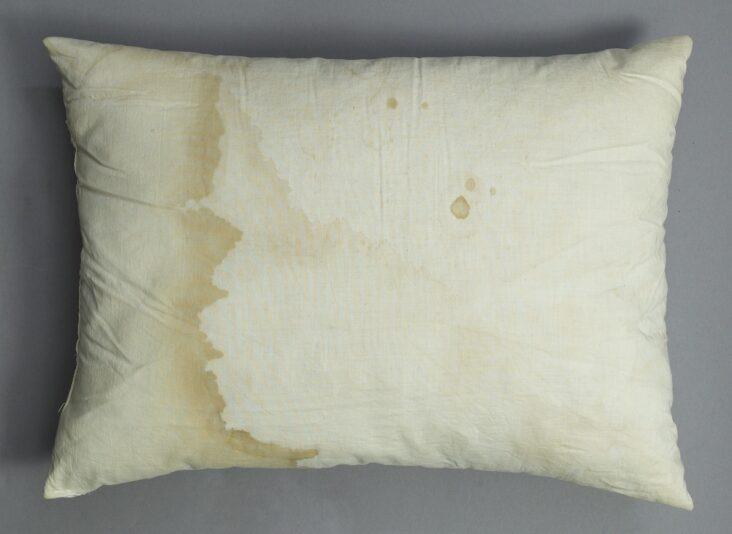 yellow stains on white pillowcases